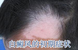 颈部白癜风在治疗时怎么护理