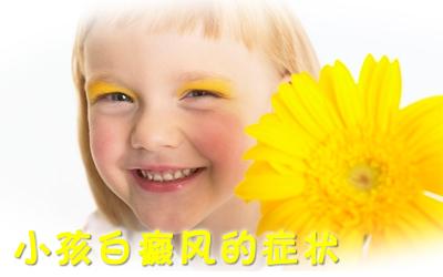 儿童白癜风有哪些症状
